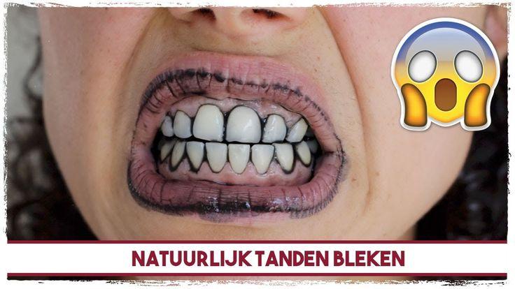 Natuurlijk tanden bleken - REVIEW #2 IVORIES
