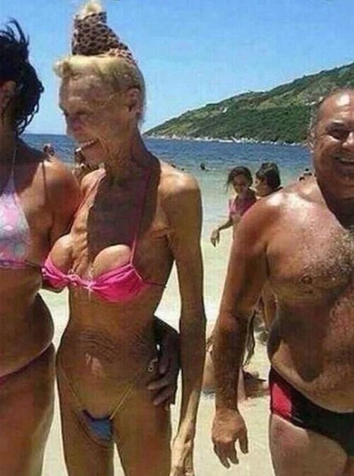 Boob Jobs Don't Die They Just Fade Away - Old Implants in Bikini on Beach Fail  ---- best hilarious jokes funny pictures walmart humor fail