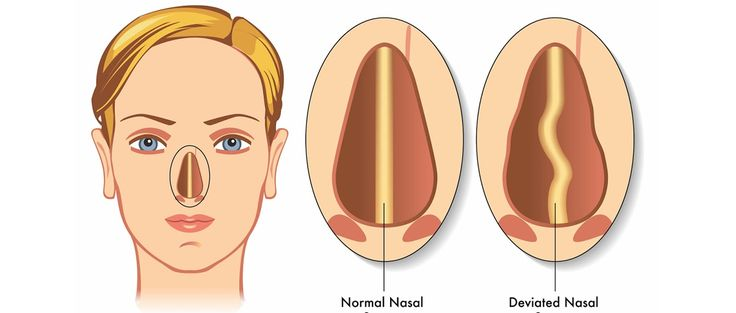 The main structural problem occurring in the nose is that of a deviation of the nasal septum. The septum is the (normally) midline structure of the nose, made up of cartilage and bone, that divides the nose into its two halves. The septum can deviate due to prior trauma.