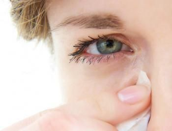 25 Best Ideas About Red Eye Infection On Pinterest