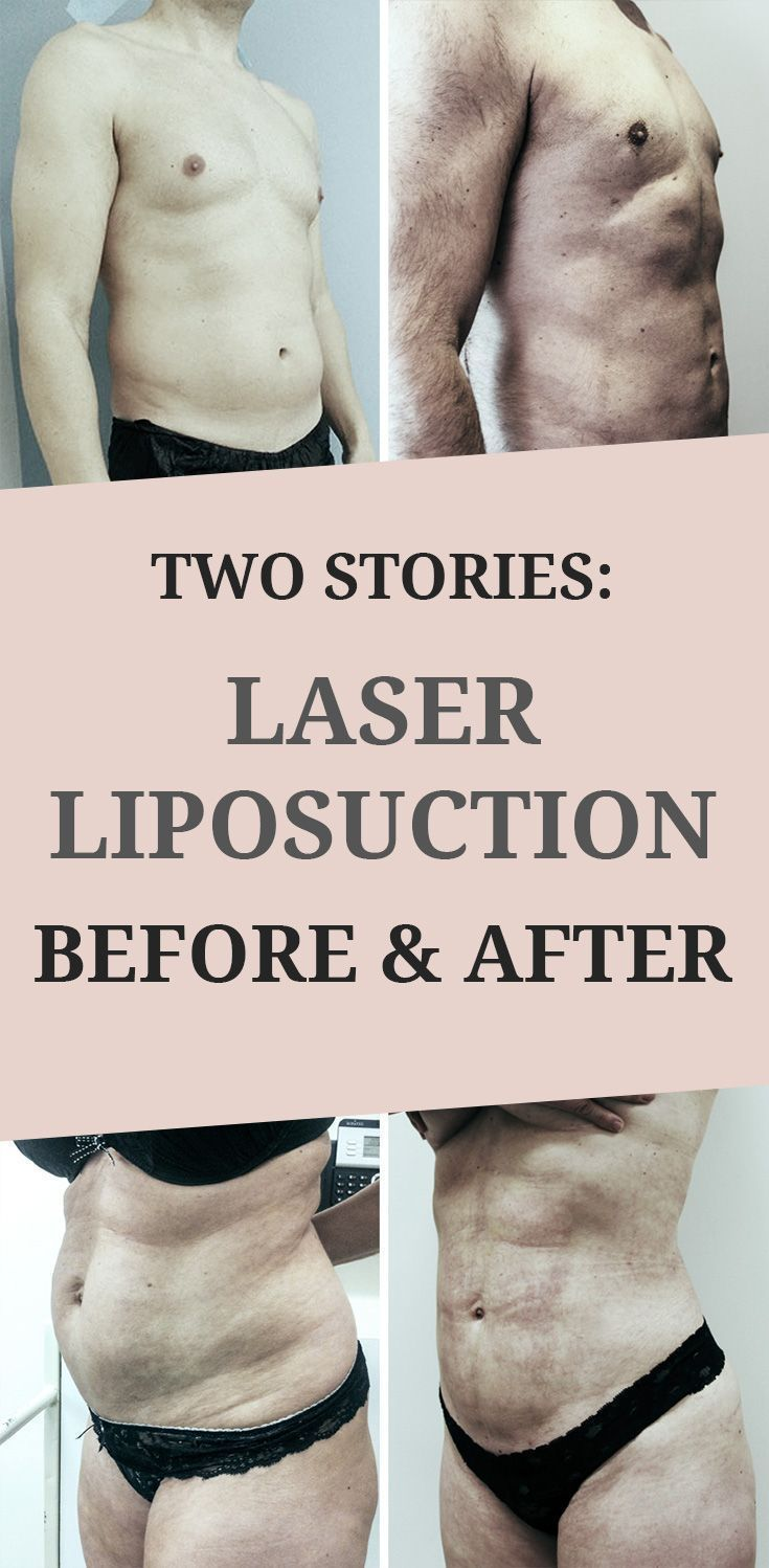 #click #hear #Laser #Liposuction #sto #Stories