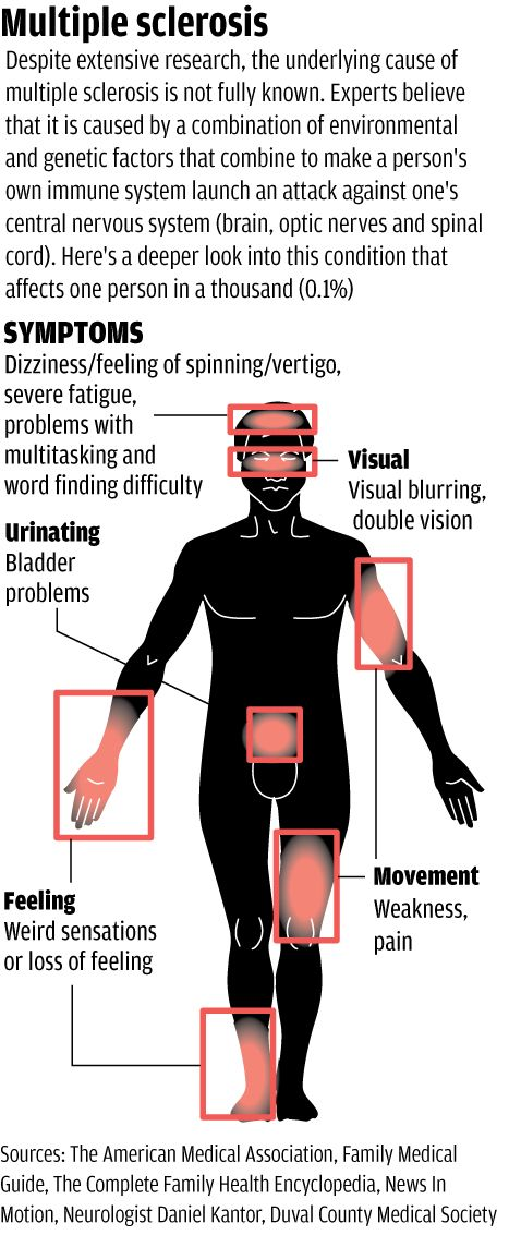 Multiple Sclerosis Symptoms 1000+ images about Mul...