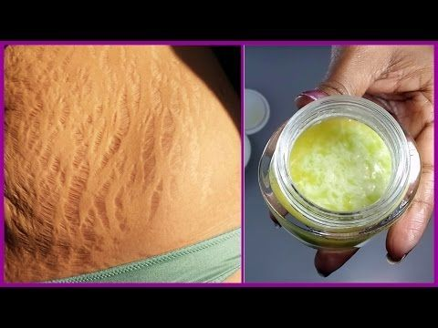 How to Remove Stretch Marks Fast and Easily | Pregnancy Stretch Marks Removal at Home - YouTube