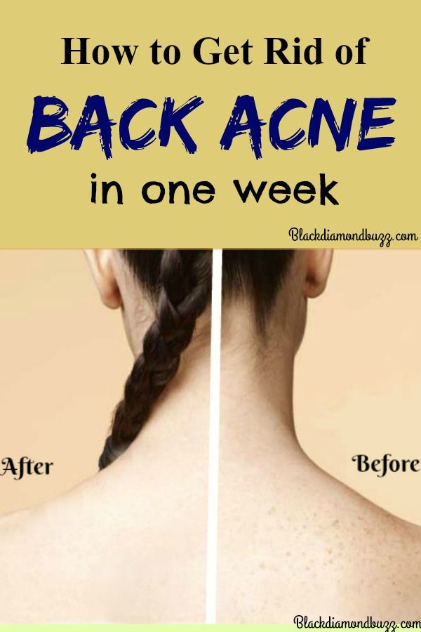 Back Acne Remedies- How to get rid of acne on back fast at home