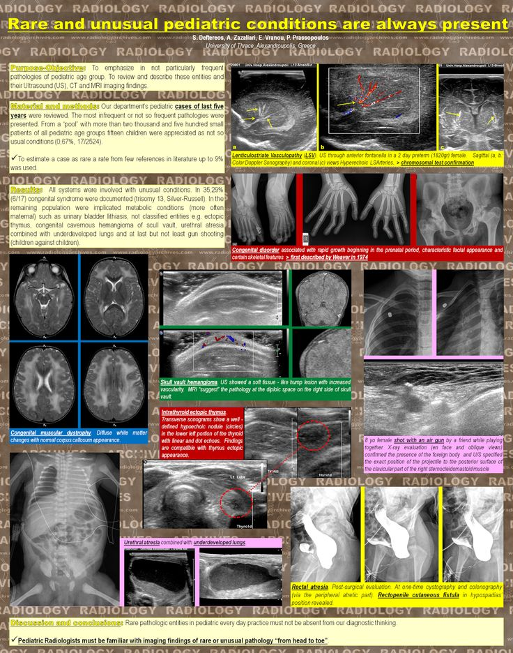Radiology  Archives: Rare & Unusual Pediatric Conditions are Always Pre...