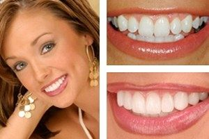 Best Dentist Charlotte Dr. Broome provides best cosmetic dental services at Charlotte center; he offers free sedation dentistry for the comfort and relaxation of his patients during dental procedures.
