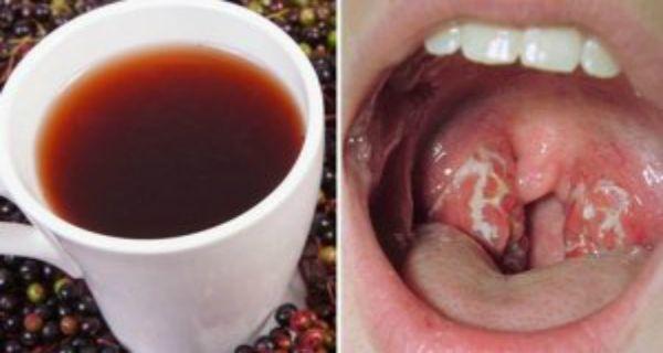 les 25 meilleures id es de la cat gorie angine virale sur