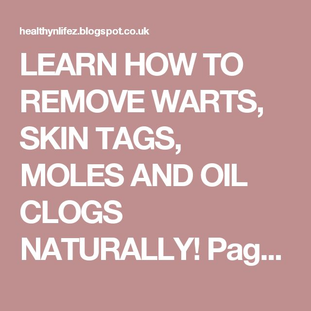 LEARN HOW TO REMOVE WARTS, SKIN TAGS, MOLES AND OIL CLOGS NATURALLY! Page 2 | HEALTHYLIFE