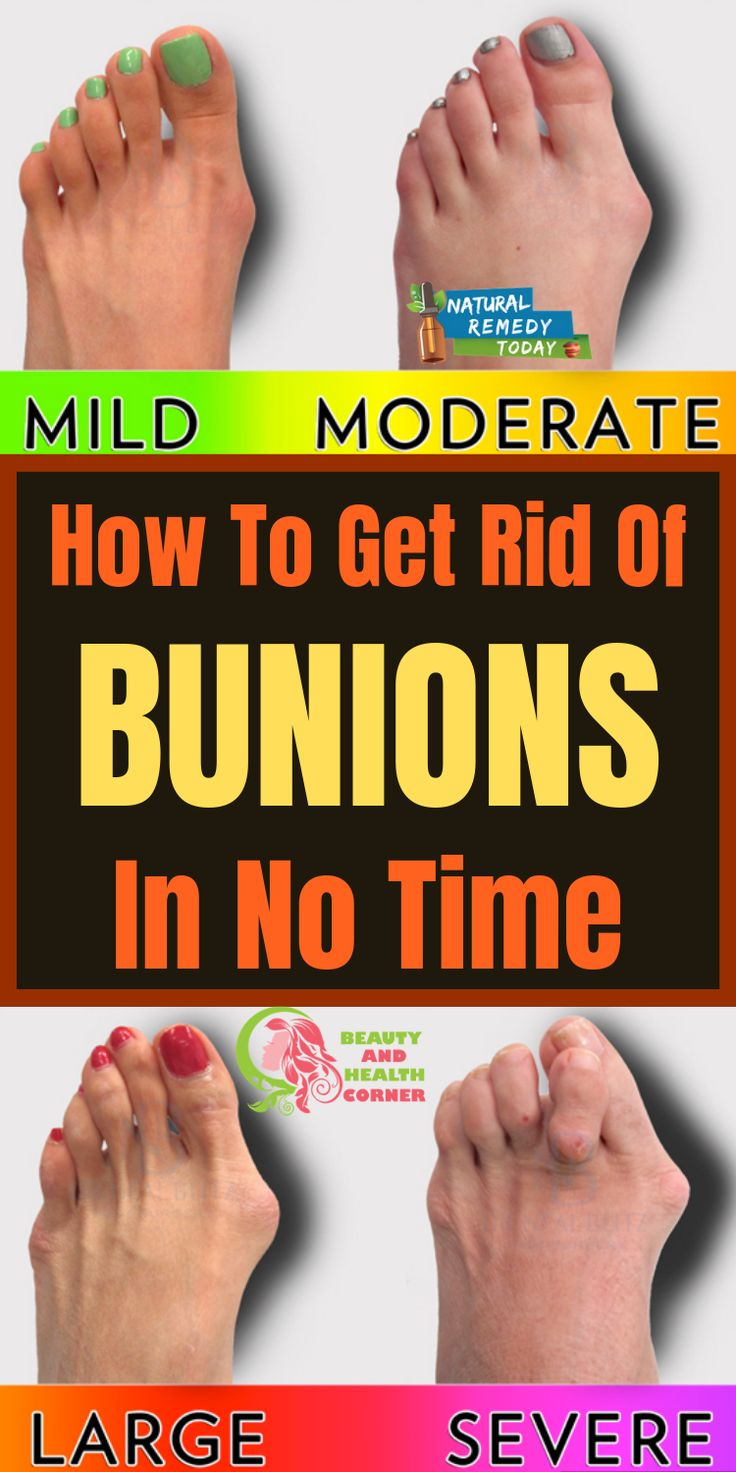 How to get rid of bunions in no time with images get