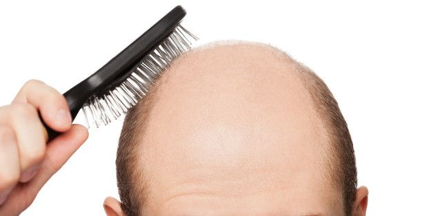 The truth about hair loss and baldness cures