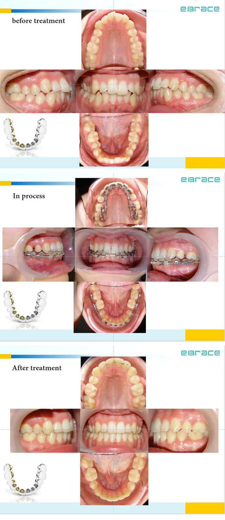 Orthodontic treatment of lingual braces combined with labial braces may be your best choice..! #eBrace# #orthodontics# #hiddenbraces# #insidebraces#