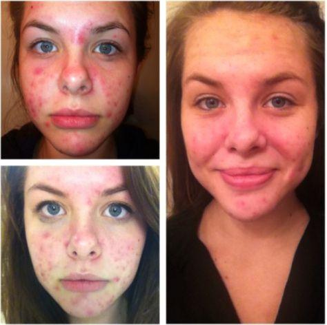 how to cure pimples on face overnight