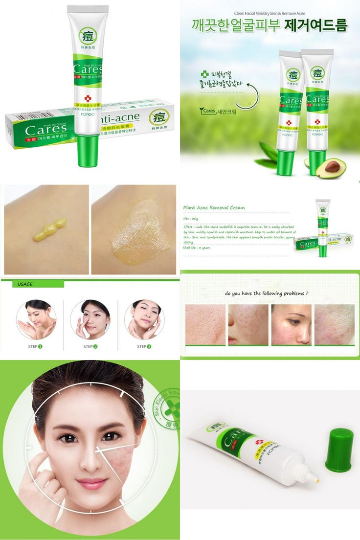 [Visit to Buy] Women Face Skin Care Natural Acne Scars Repairing From Removal Blackhead Removedor Acne Treatment Cream #Advertisement