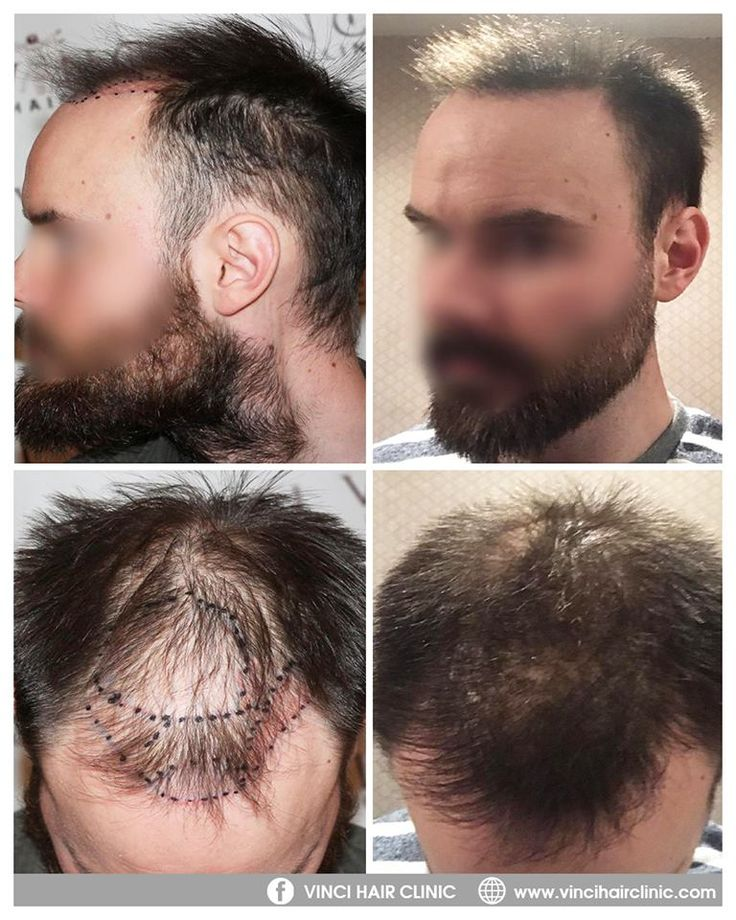 When a client has limited donor hair available on their scalp, there are other possibilities for hair transplants. Vinci Hair Clinic Malaga got an incredible result for this client with FUE surgery using grafts from both his scalp and beard. One year after the procedure and his hair is looking thicker overall and he has a much more flattering hairline – a fantastic result.  Free consultations worldwide https://www.vincihairclinic.com/contact-vinci-hair-clinic/