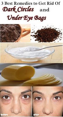Get Rid of Under Eye Bags Naturally