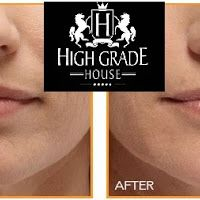 Lips laser- Advanced technology for making lips more attractive