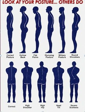 what do others see when they look at your posture? www.bodyelementspdx.com