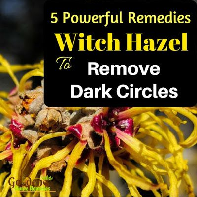 Witch Hazel For Dark Circles: Home Remedies For Dark Circles, How To Get Rid Of Dark Circles, How To Remove Dark Circles, Dark Circle Home Remedies, Dark Circle Treatment, Dark Circle Remedies, How To Treat Dark Circles,