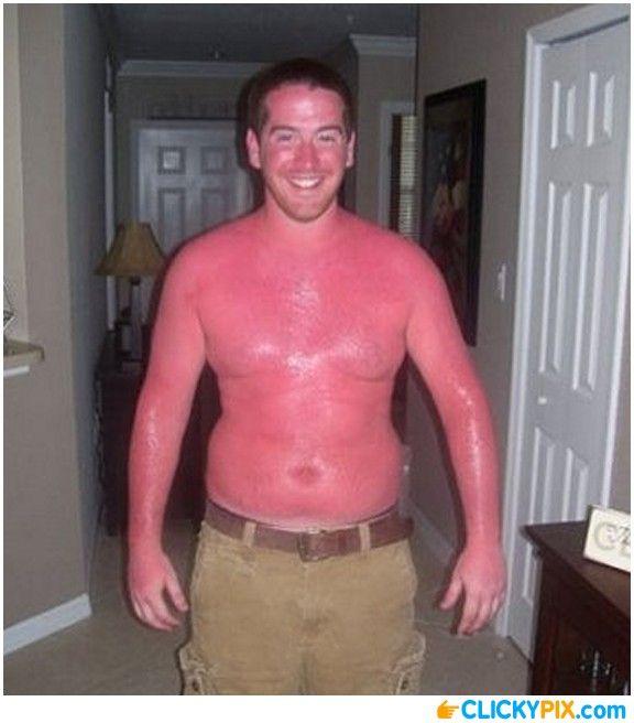 Картинки сгорела на солнце