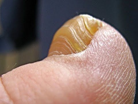 http://toenailsfunguskiller.com - To get the proper knowledge about infected toe you need to check our blog by going to this awesome link.