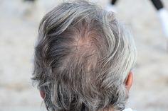 Was tun gegen graue Haare? Abdecken, färben oder ausreißen? Hausmittel gegen graue Haare stoppen natürlich Farbverlust. Hier finden Sie die besten Mittel!
