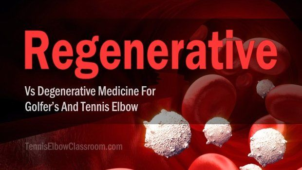 A Sports Medicine Doctor discusses the benefits of Regenerative Medicine treatment options for tendon-related Tennis Elbow and Golfer's Elbow, as well as ligament-related elbow injuries - options including Prolotherapy and Platelet-Rich Plasma Injections, which are compared to the downsides of Cortisone Shots and braces. | #TennisElbow | https://tenniselbowclassroom.com/videos/regenerative-vs-degenerative-tennis-elbow-treatments/