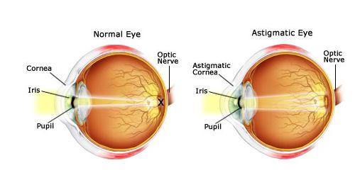 Astigmatismo, veja as suas causas, sintomas e tratamentos. O que é o astigmatismo? Quais os sintomas do astigmatismo? Leia mais...