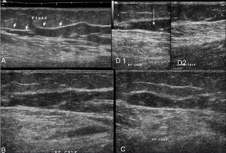 Diagnosis of partial muscle rupture is based on the presence of localized disruption or discontinuity of muscle fibers, whereas, a complete rupture is defined as a lesion that involves the entire muscle, usually with a gap between the torn ends. On USG, fluid collections / hematomas
