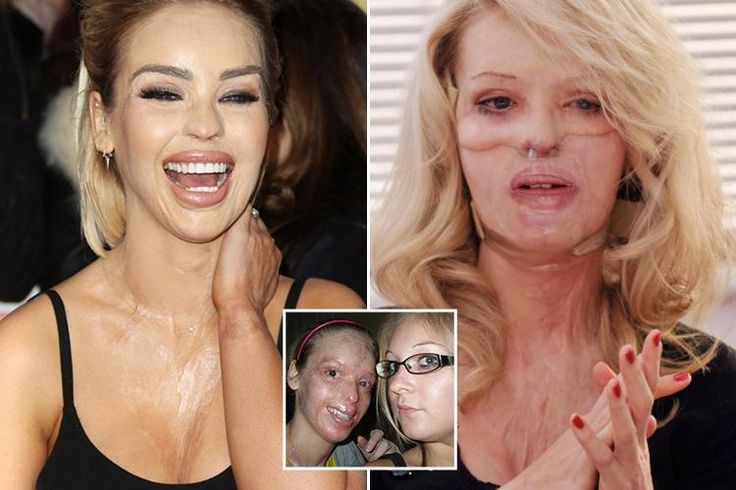 KATIE PIPER has charmed the UK with her heroic story of overcoming a horrific acid attack to become a household name as a TV presenter. Now, her inspirational life story is set to hit the silver sc…