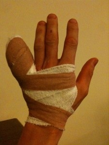 Not easy to get fit with a broken finger!