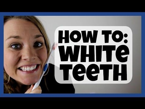 How To Get White Teeth (What Worked for Me!) - YouTube
