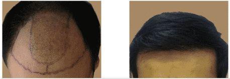 FUE Hair Transplant Dubai