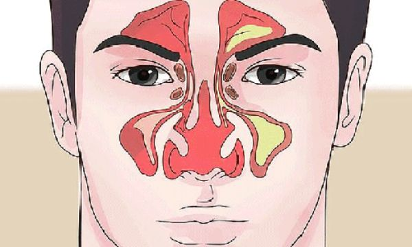 Come liberare il naso chiuso in 1 minuto con un semplice esercizio