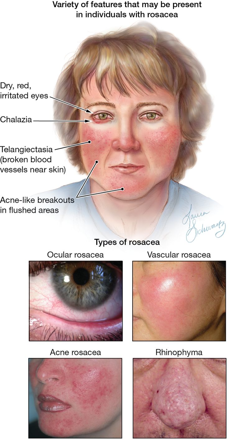 small resolution of rosacea diagram