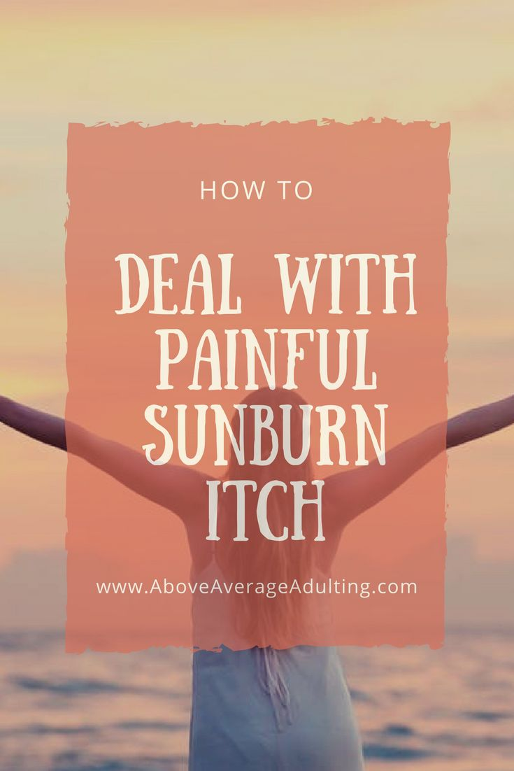 How to Deal with Painful Sunburn Itch - Above Average Adulting