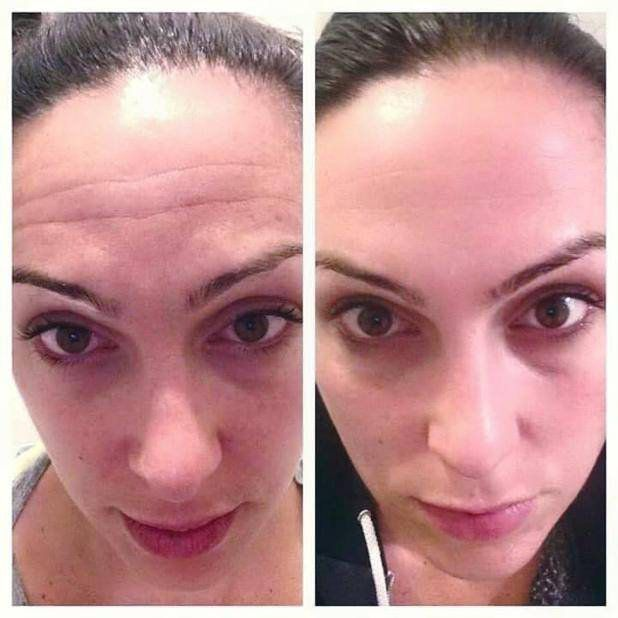 Katherine No Makeup 3 Month Results Thanks To The Rodan