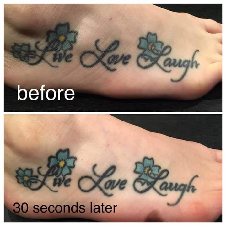 12 best anti aging technology images on pinterest anti for Tattoos on old skin