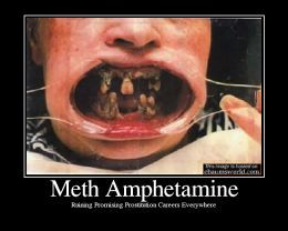 "Many Faces of Meth | ""Meth Mouth"", one can see how devastating the use of methamphetamine ..."