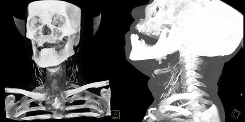 Patient who arrived at the hospital with symptoms of pneumonia is given an x-ray, only to discover his neck is full of needles. The patient is a heroin addict who would shoot up into his neck, he would then pass out or fall asleep and the needles would break off into his neck