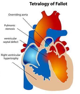 Tetralogy of Fallot is a rare, complex heart defect which occurs in approximately 400 per million live births. Tetralogy of Fallot involves four heart defects: a large ventricular septal defect (VSD), pulmonary stenosis, right ventricular hypertrophy, and an overriding aorta.