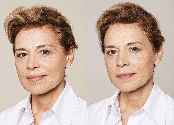 Hvis man ser behandlet ut, har behandleren gjort en dårlig jobb, sier Petra Eckmann hos Aleris og Cocoon.