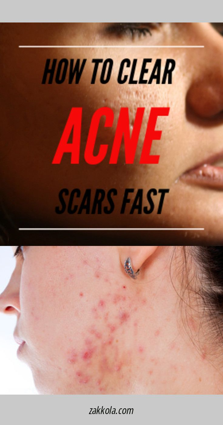 ff492a15f660537f22ad40dc8f813cc9 - How To Get Rid Of Acne Blackheads And Oily Skin