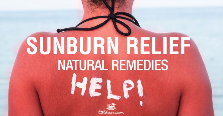 Despite our best efforts, sometimes sunburns happen. Read our tips for fast and natural sunburn relief!