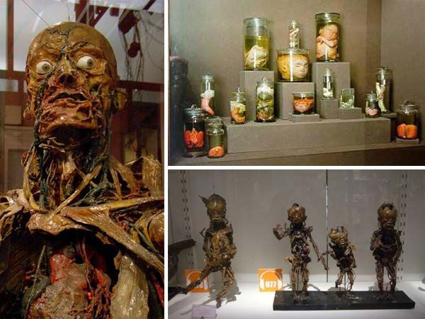 Musee Fragonard. Paris, France. While most molages use wax; Honore Fragonard , in 1776, developed a way to preserve flesh.  His displays are real.