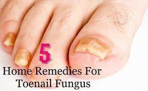 5 Best Home Remedies For Toenail Fungus #ToenailFungusTreatment ...