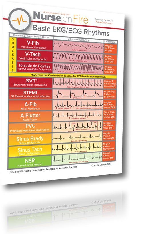 EKG / ECG Cheat Sheet. 11 Basic Rhythms Nurses Need To Know.  Download so you can recognize the important EKG rhythms while taking care of your patient.