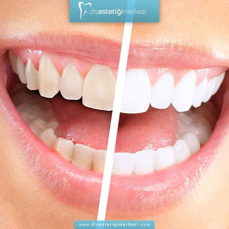 Beyazlatma (bleaching)   Diş beyazlatma, dişlerinin renginden memnun olmayan bireyler için önerilen en ideal ve en koruyucu tedavidir. Dişlerin doğal renkleri çeşitli nedenlerle yıllar geçtikçe koyulaşır. Diş beyazlatma yöntemiyle dişler ton olarak açılarak tatmin edici bir görünüm sağlar.