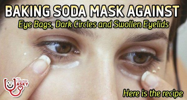 Baking Soda Mask Against Eye Bags, Dark Circles and ...