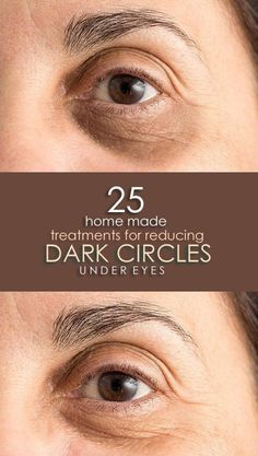 How To Remove Dark Circles Under Eyes?