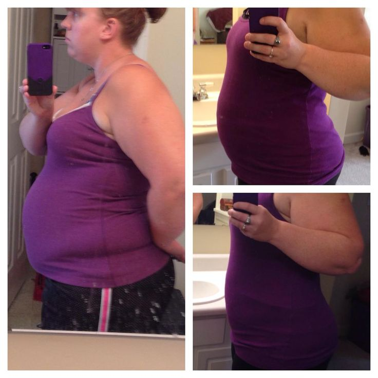 Will taking metformin for pcos help me lose weight picture 9